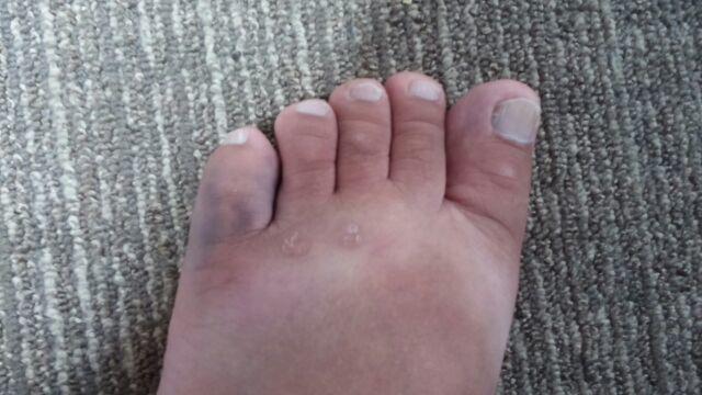 骨折 見分け 方 足 指